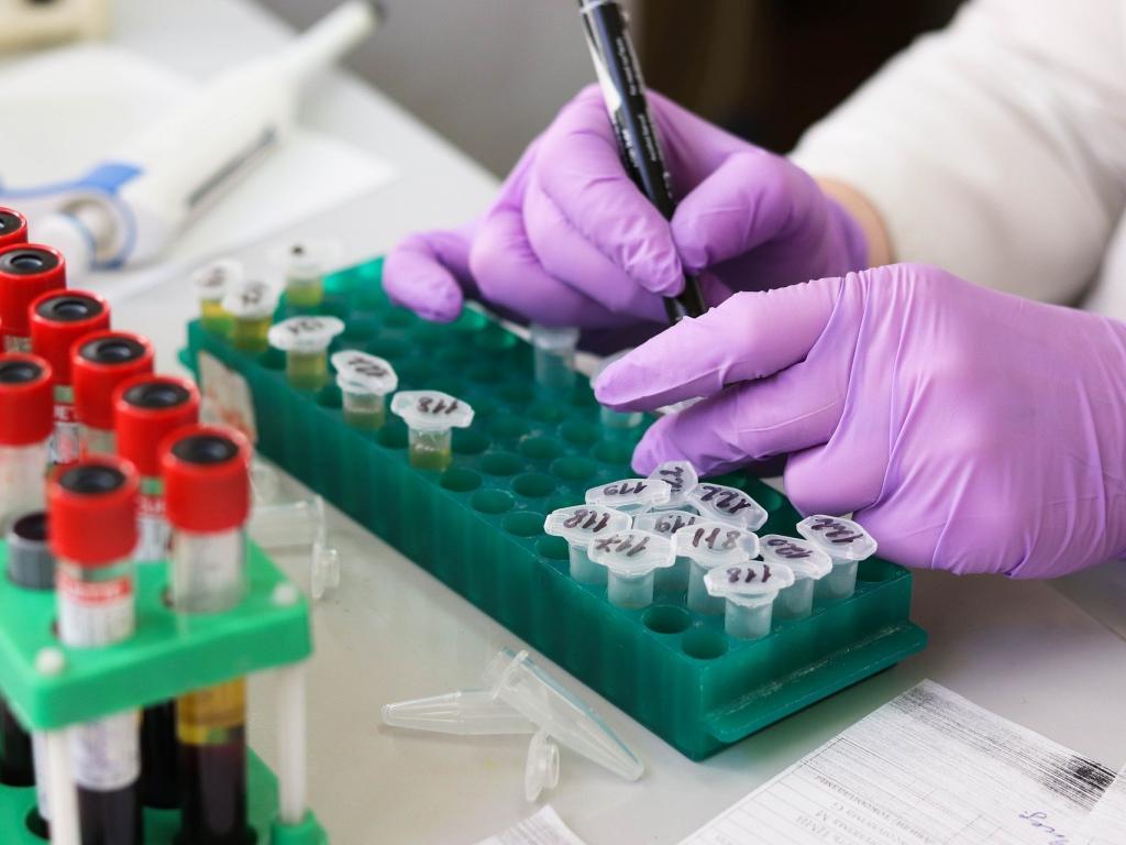 Pdufa Calendar 2021 Attention Biotech Investors: Mark Your Calendar For June PDUFA Dates
