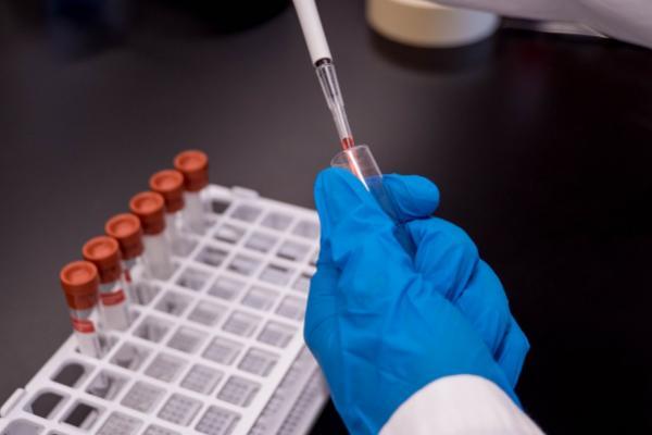 Inovio Pharmaceuticals Begins Phase 1 Human Testing Of Its COVID-19 Vaccine
