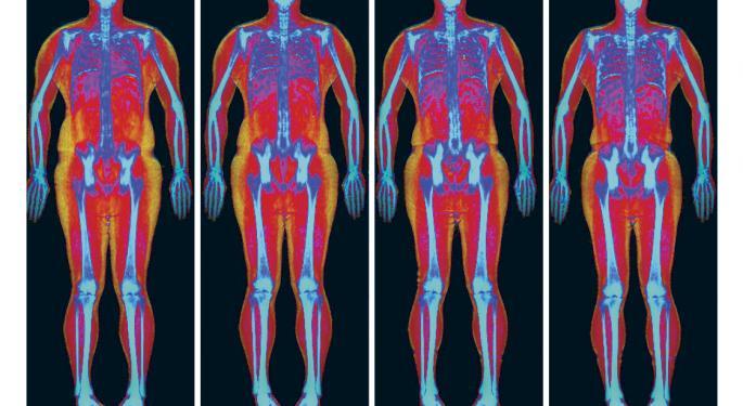 Hologic's SculpSure Body Contouring Treatment Scores Distribution Win