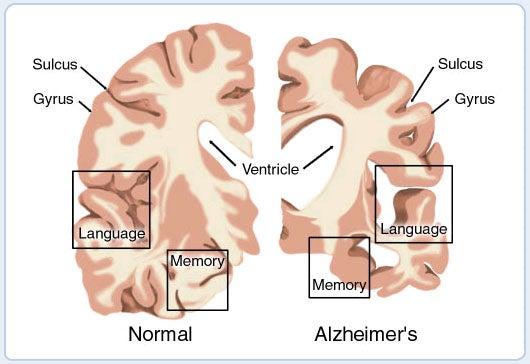 brain_cross_section_border.jpg